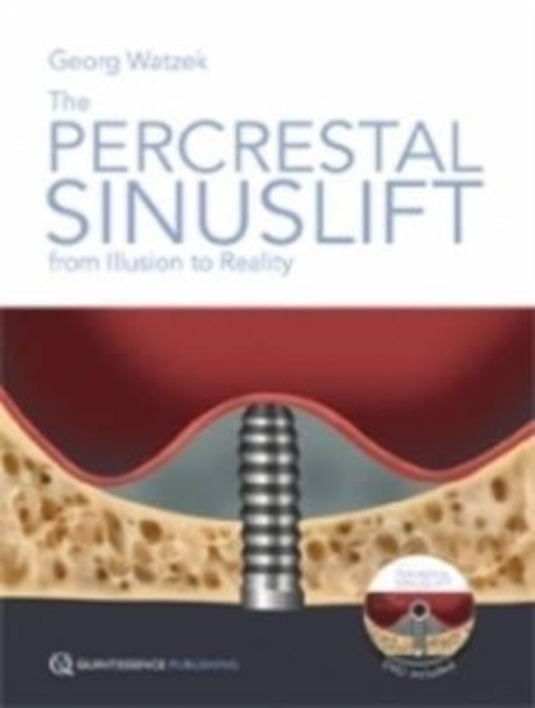 Percrestal Sinuslift