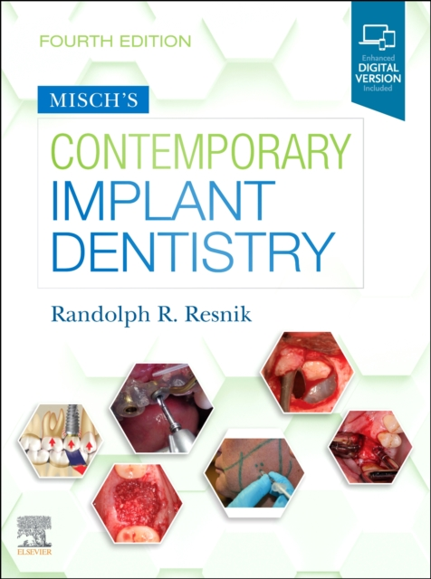 Misch's Contemporary Implant Dentistry