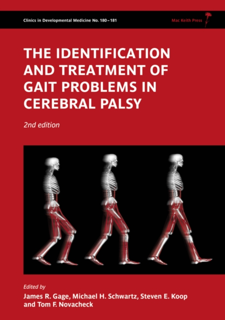 Identification and Treatment of Gait Problems in Cerebral Palsy