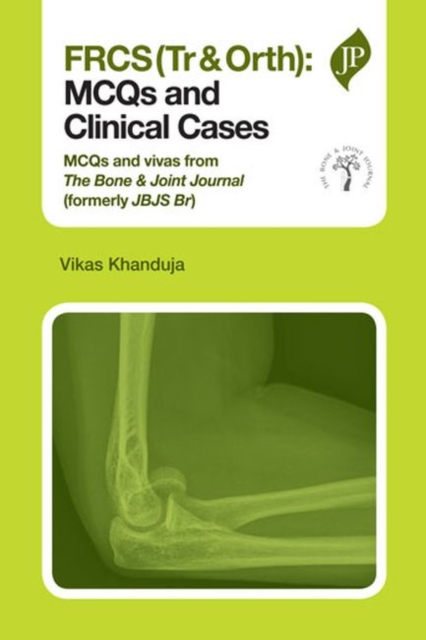 FRCS(Tr & Orth): MCQs and Clinical Cases